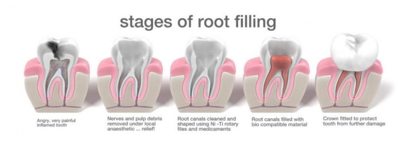Advanced Root Canal Treatment - Lion House Dental Practice